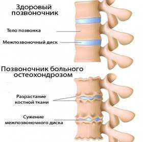 Заговор от шейного остеохондроза